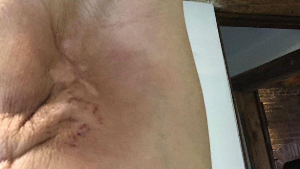 Armpit post-surgery