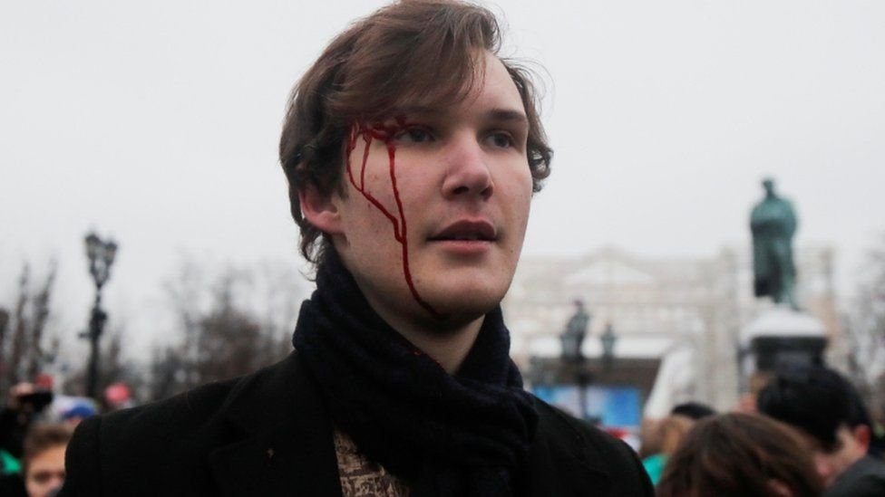 A pro-Nalavany protester is seen with blood on his head in Moscow protest