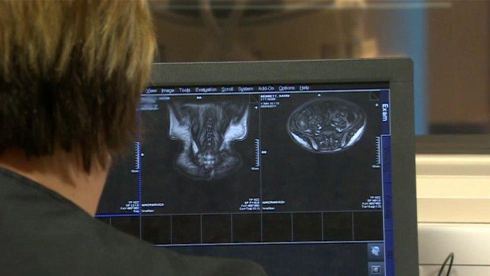 Scan in hospital