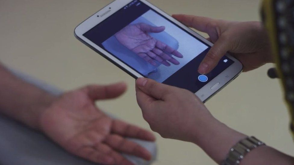 Doctor photographing patient's hand on a tablet