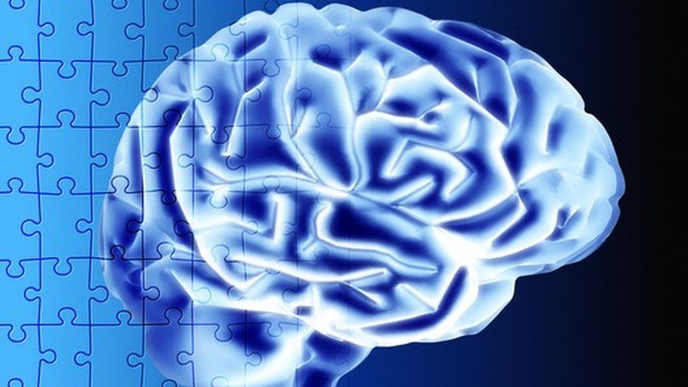 A jigsaw puzzle of the brain