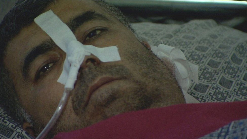 Abdul Rashid, who was injured in the Kabul bomb attack