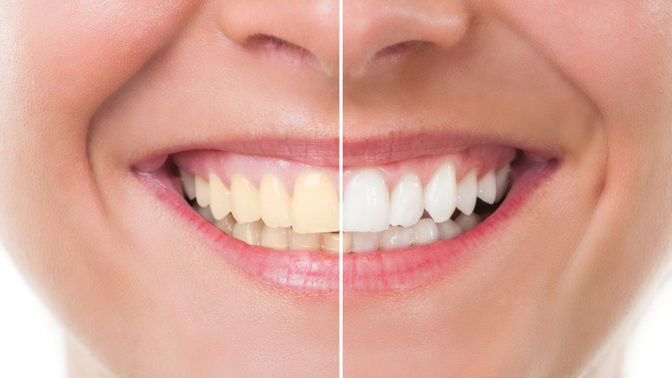Before and after whitening picture of teeth