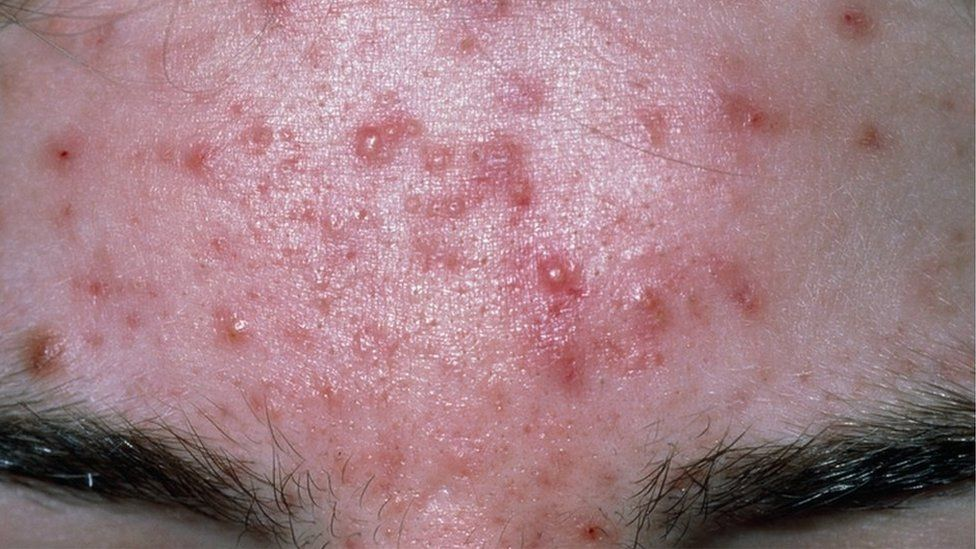 Acne on a person's forehead