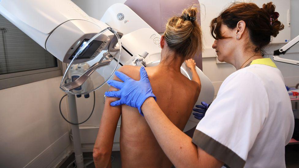 A patient has a mammogram