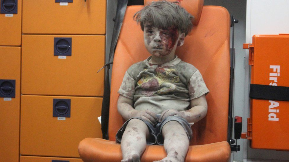 Omran Daqneesh, a four-year-old Syrian boy covered in dust and blood, sits in an ambulance after being rescued from the rubble of a building hit by an air strike in the rebel-held Qaterji neighbourhood of the northern Syrian city of Aleppo late on August 17, 201