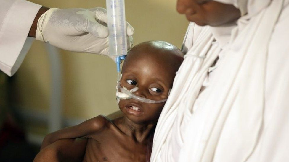 A malnourished child is fed in in Maiduguri, Nigeria's Borno state. Photo: August 2016