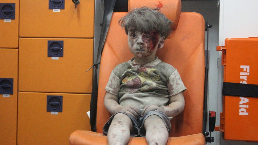 Omran Daqneesh, a four-year-old Syrian boy covered in dust and blood, sits in an ambulance after being rescued from the rubble of a building hit by an air strike in the rebel-held Qaterji neighbourhood of the northern Syrian city of Aleppo late on August 17, 2016.