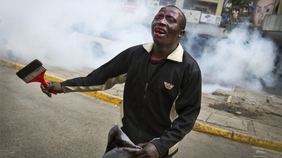 An opposition supporter with a head wound walks past riot police, begging them not to beat him, during a protest in downtown Nairobi, Kenya Monday, May 16, 2016