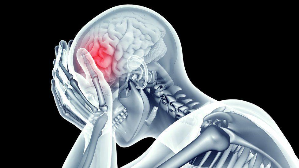 Diferentes lugares de dolor de cabeza y lo que significan