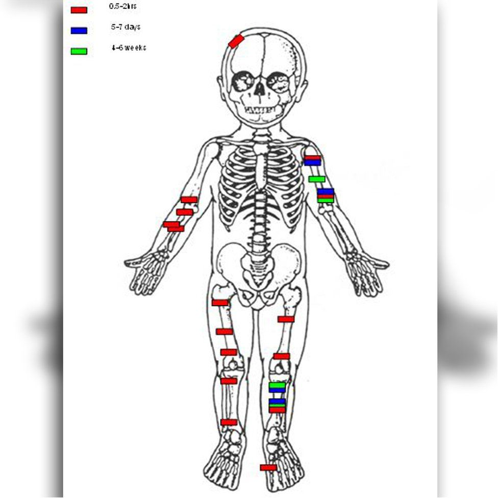 the injuries found on the body of Baby Noah