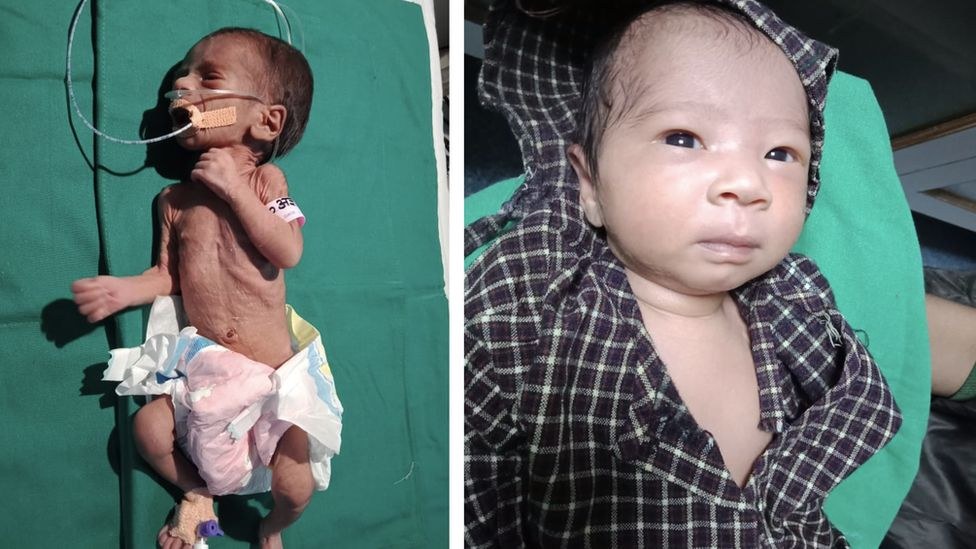 A composite image showing the before and after photographs of the baby