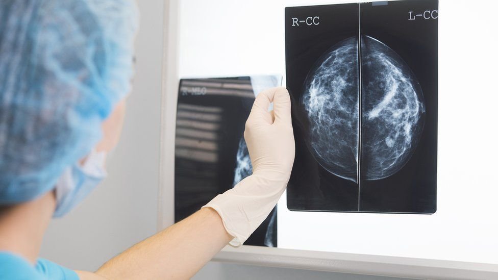 Doctor holds up a mammogram in front of an x-ray illuminator