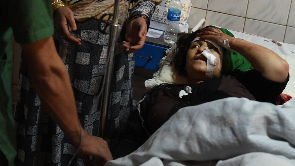 An Afghan woman receives treatment at the Ali Abad hospital after an attack inside the Kart-e- Sakhi shrine in Kabul on 11 October