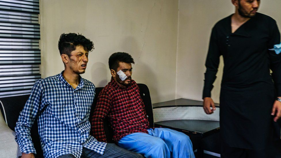 Journalists from the Etilaatroz newspaper, Taqi Daryabi, 22, video editor, left, and Nemat Naqdi, 28, a video journalist, right grimace as they sit on their wounds sustained after Taliban fighters tortured and beat them while in custody after they were arrested for reporting on a women's rights protest in Kabul, Afghanistan, Wednesday, Sept. 8, 2021