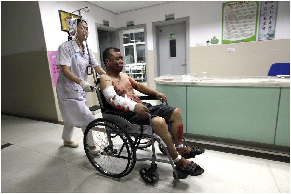 An injured man is assisted by a nurse at a hospital following treatment for his injuries after a series of blasts in Liucheng county in Liuzhou, south China's Guangxi province on 1 October 2015