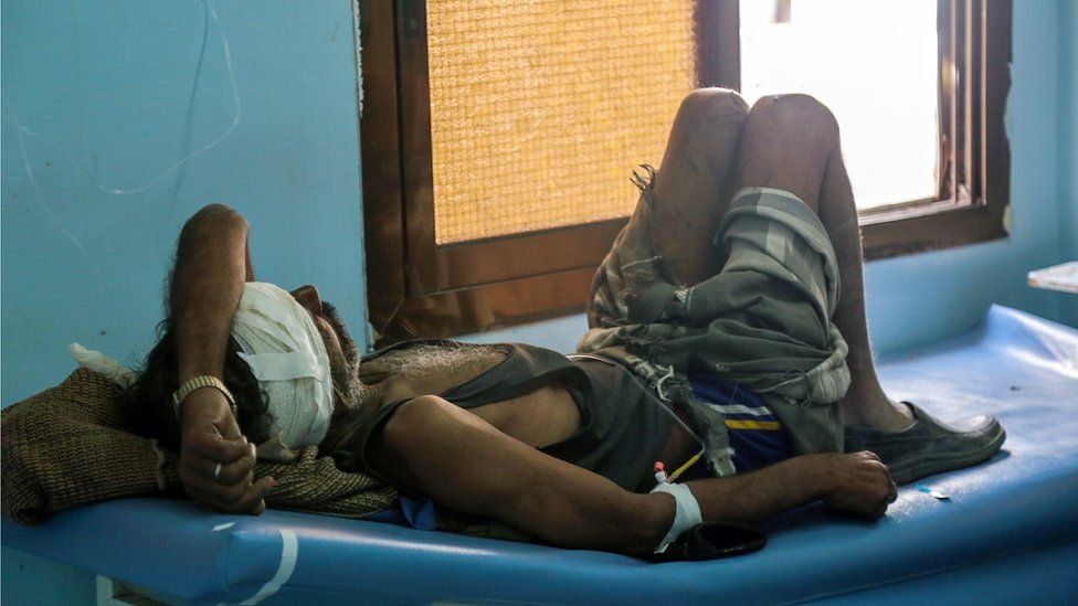 A Yemeni man lies in a hospital bed after he was reportedly injured in a Saudi-led coalition air strike against Shiite Huthi rebels and their allies on December 29, 2015