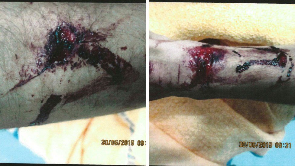Images of an injury on an arm