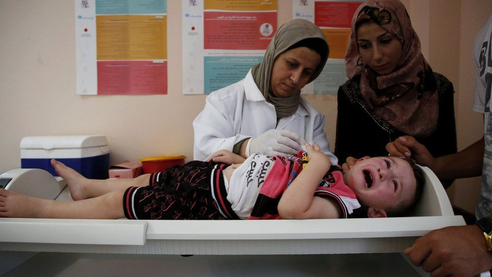 A Palestinian child receives medical check ups and aid from the Unrwa mobile team in the West Bank city of Hebron, 9 August 2018