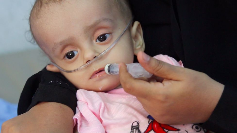 Child in hospital in Yemen
