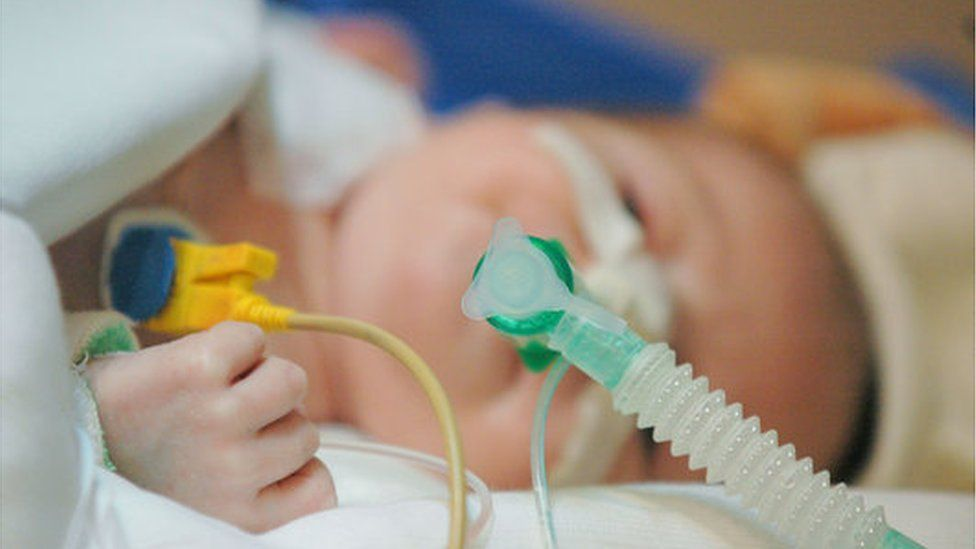 Sick baby being intubated