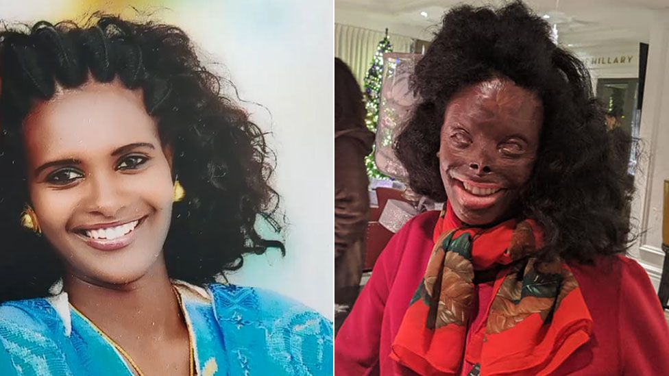 Atsede Nguse suffered major acid burns in attack by her husband