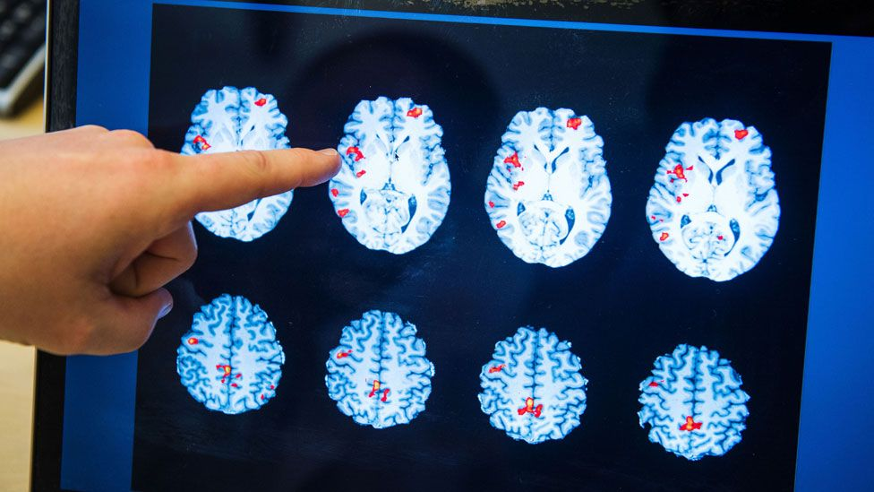 Brain scans from Karolinska Institute in Stockholm