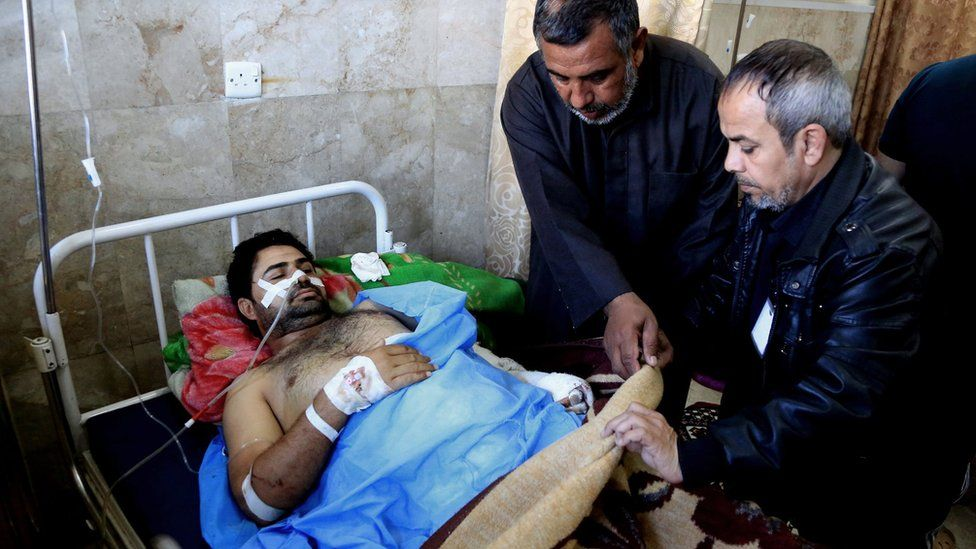 An injured victim of a twin suicide bomb attack in Sadr City, Baghdad, is treated in hospital (29 February 2016)