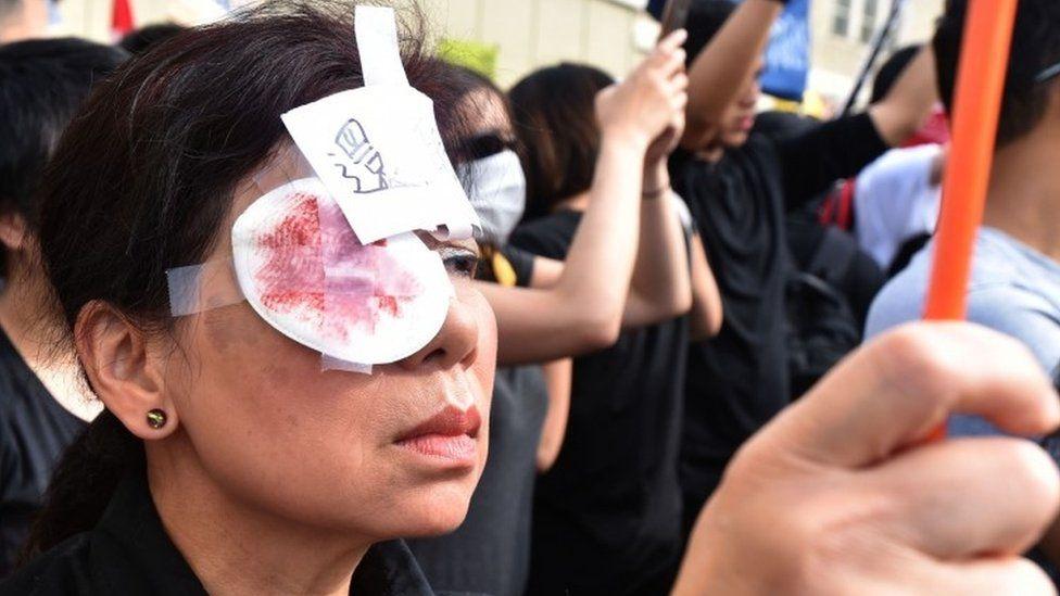 Ở Vancouver, một người ủng hộ dân chủ cho Hong Kong đeo một miếng băng gạc ở mắt và một bức vẽ mô tả muối đổ vào vết thương - ám chỉ đến một người biểu tình ở Hong Kong, người được cho là bị thương ở một mắt bởi đạn của cảnh sát