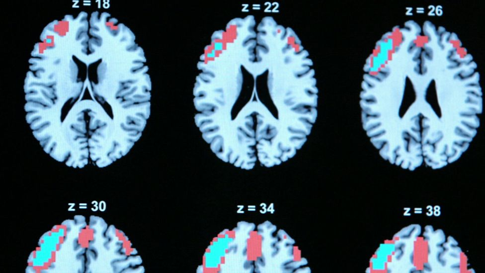 neural images showing brain activity