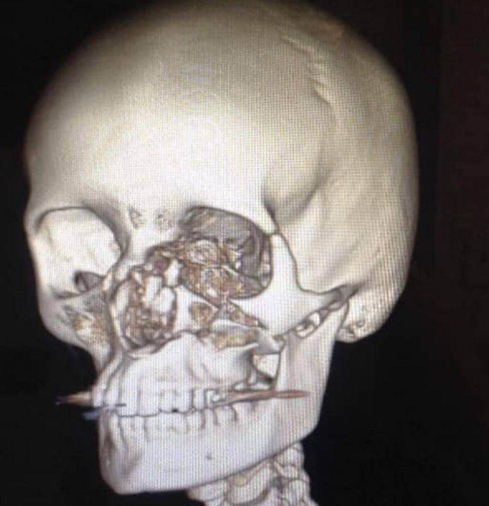 An X-ray of Holly's damaged skull
