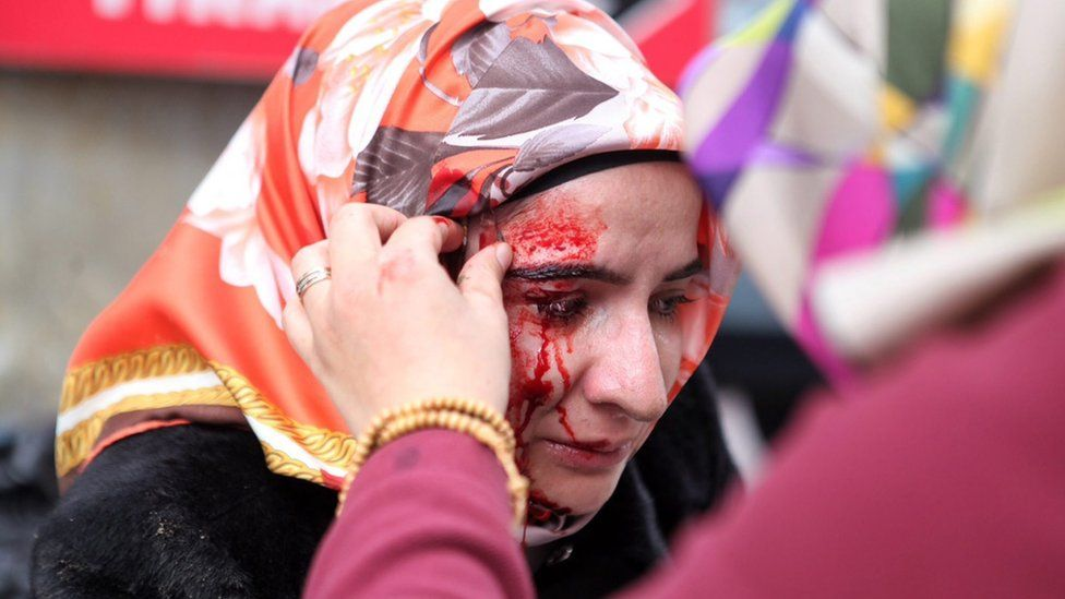 A handout picture released by the Zaman Daily News shows a wounded woman being helped by her friends during a protest outside of Zaman newspaper building, in Istanbul, Turkey, 05 March 2016