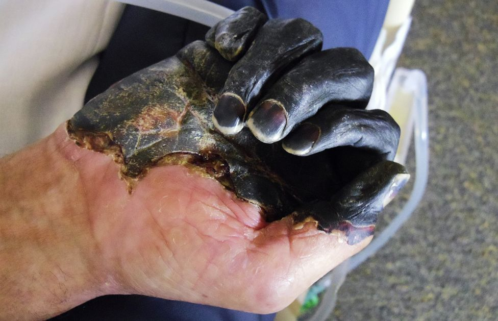 Dry gangrene, caused by the plague