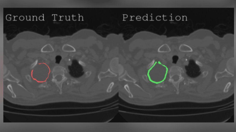 AI image of tumour