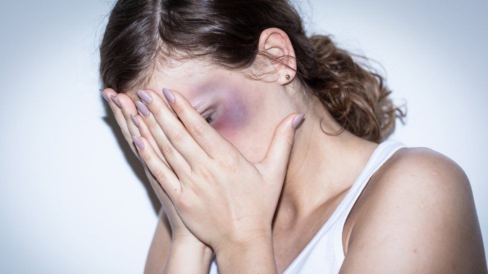 A woman with a bruised face