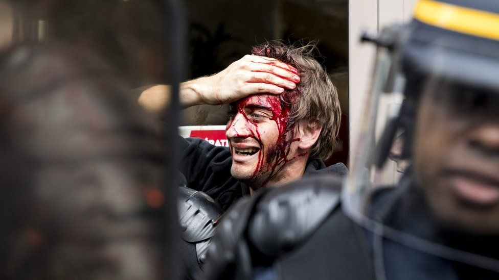 A protester is injured during a demonstration