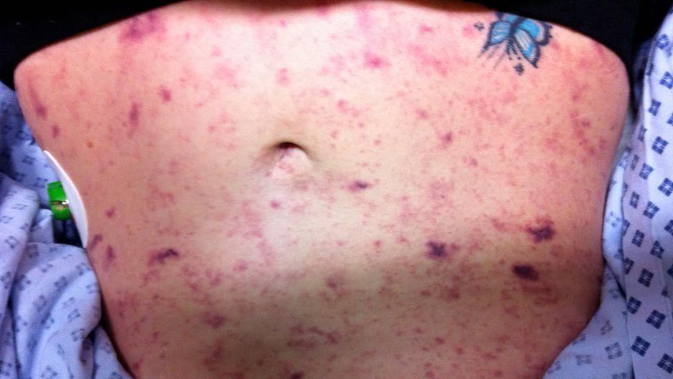 Amy Davis' stomach