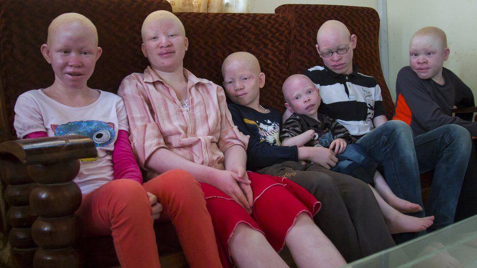 Les albinos victimes de crimes rituels en Afrique australe