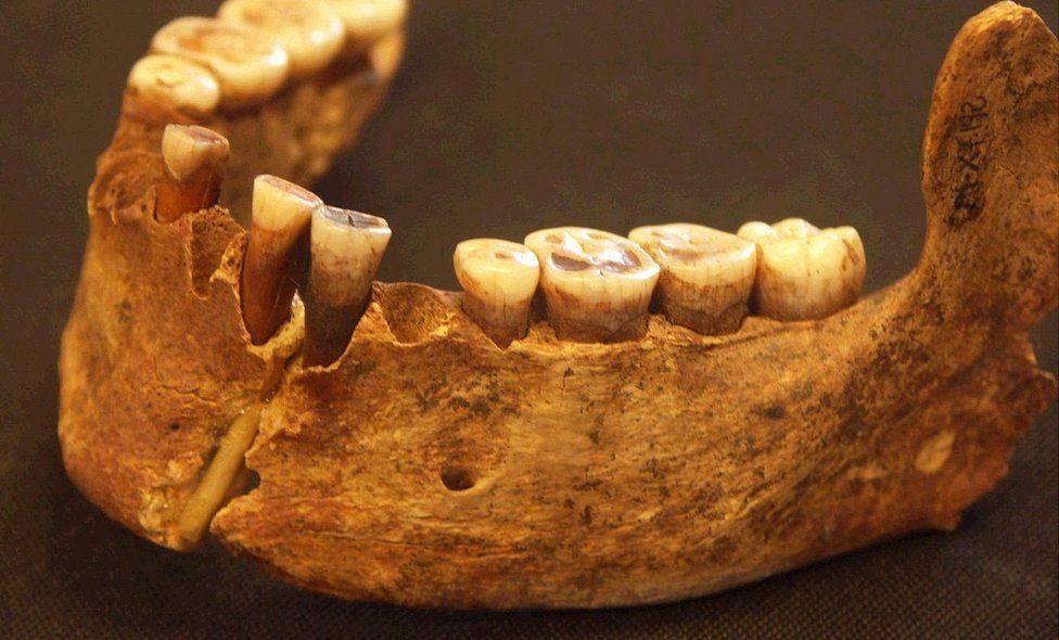 El Miron jawbone