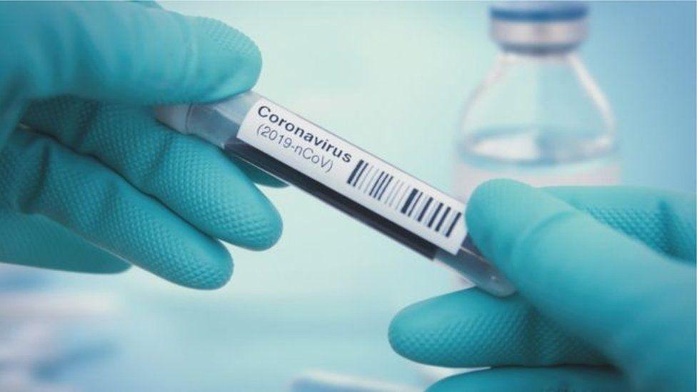 Conoravirus test-tube