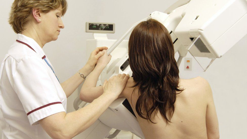 A radiographer getting a woman ready for a mammogram or breast X-ray