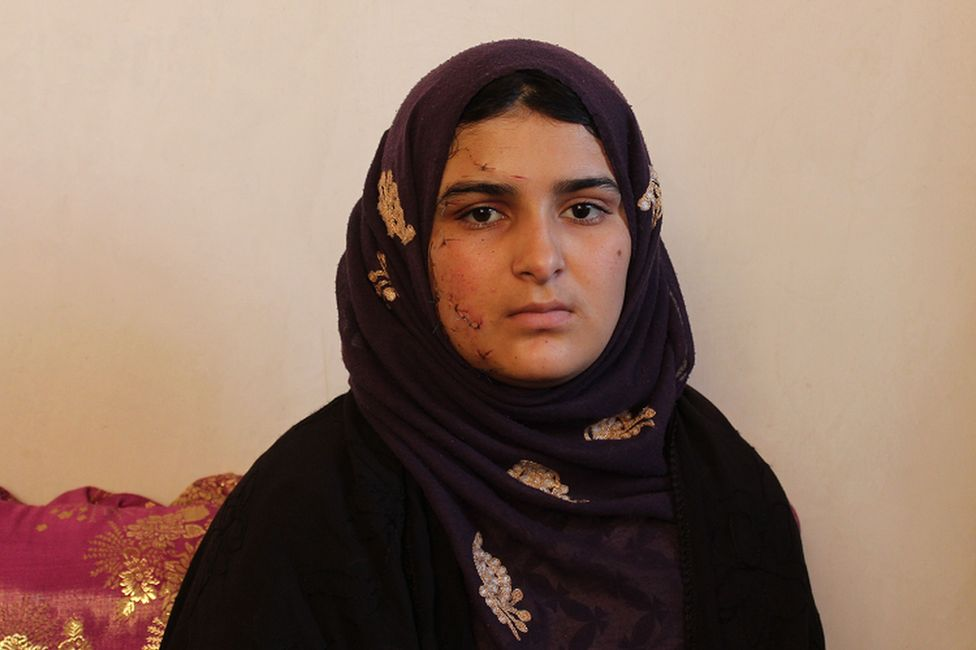 Razia survived the car bomb detonated next to her sign language school