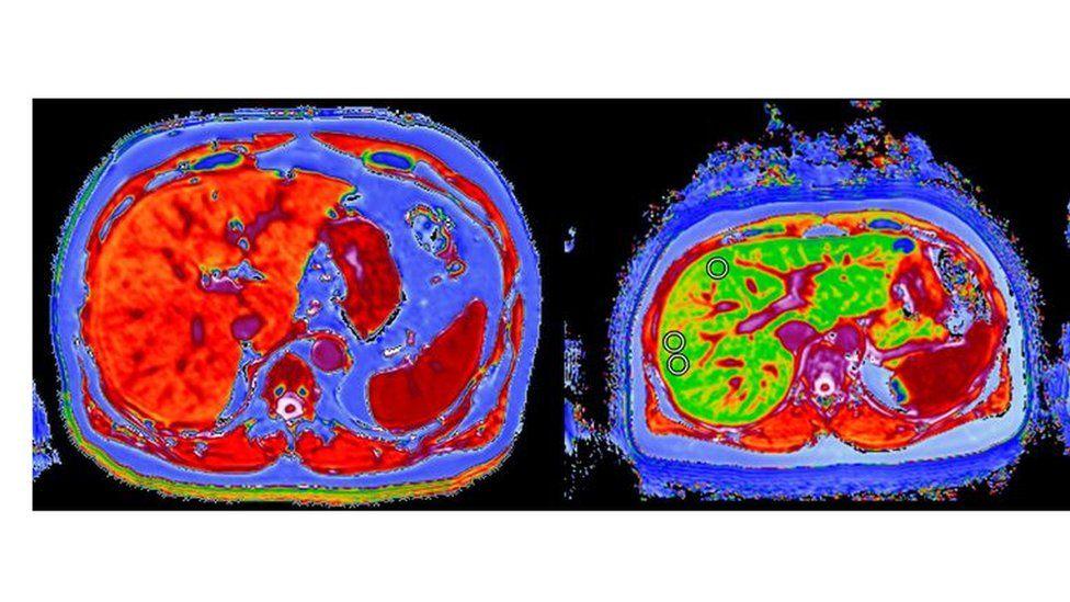 liver scans