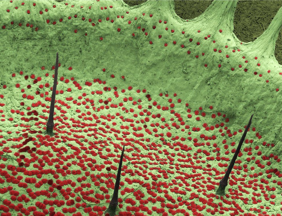 microscopic view of trigger hairs