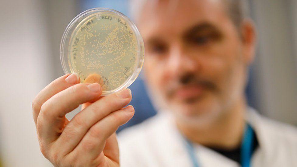 Koronavirus Azərbaycan iqtisadiyyatına nə qədər ziyan vurur? – AÇIQLAMA