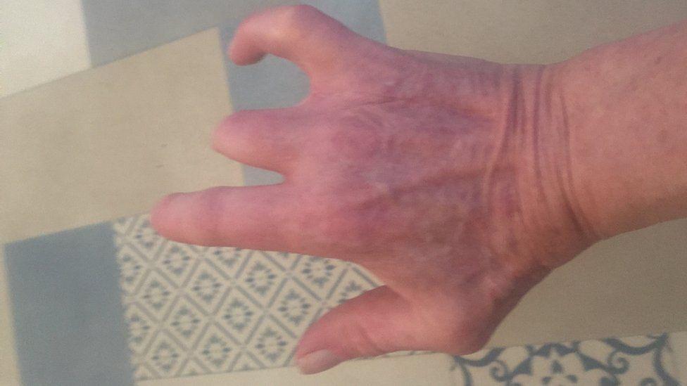 Helen Langford's hand
