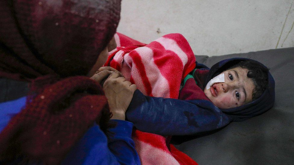 A Syrian child injured in a reported Russian air strike at a hospital in Ariha, Idlib province (30 January 2020)
