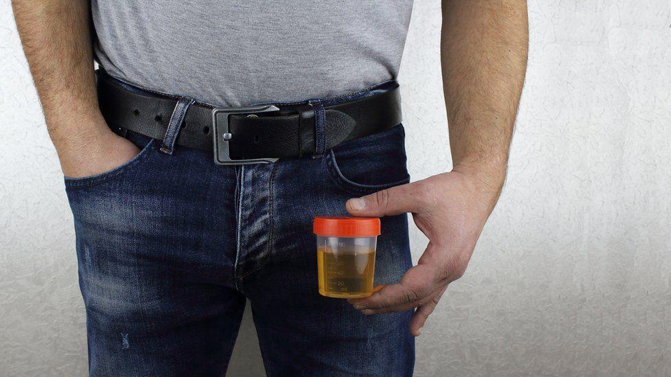 Man holding a urine sample