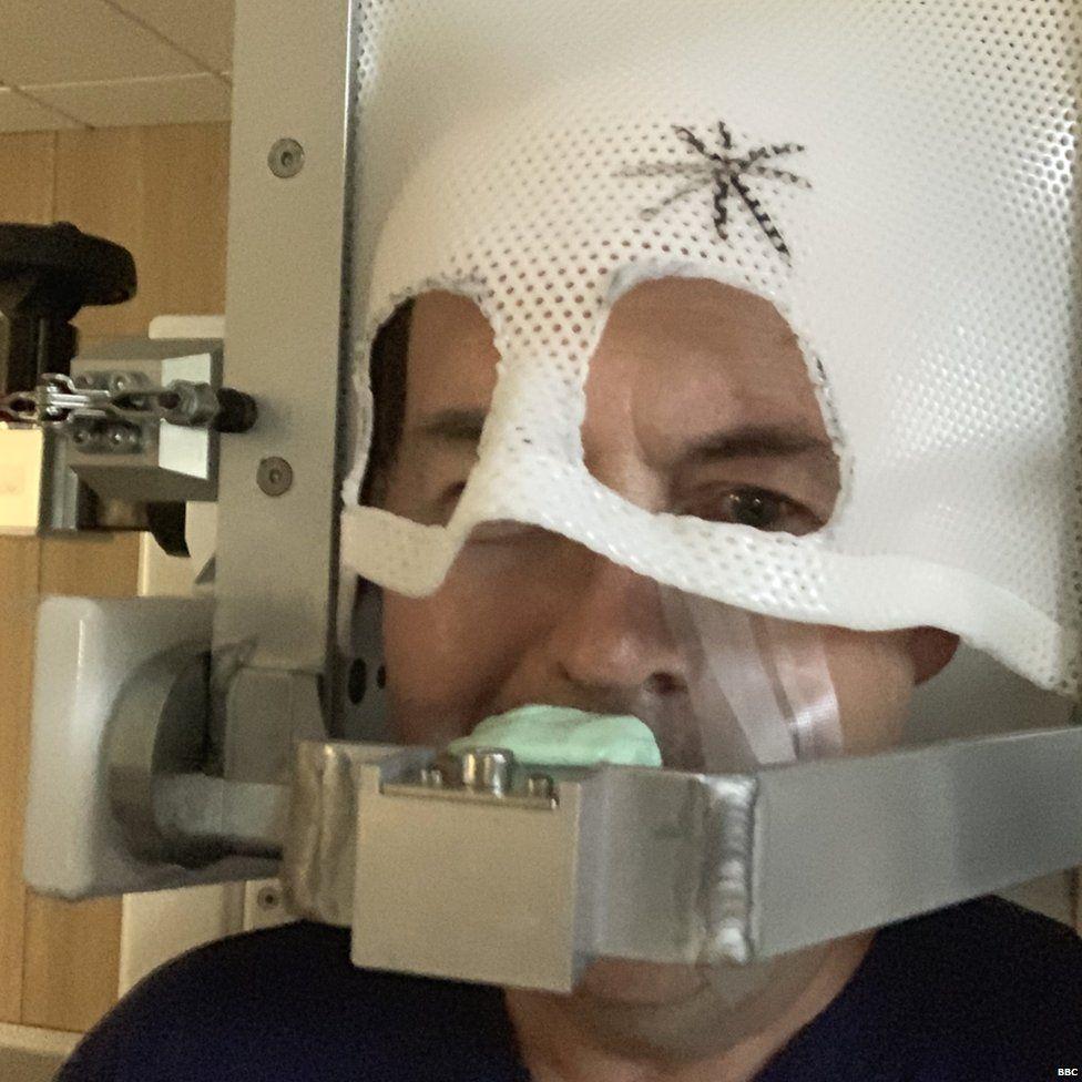 Rory Cellan-Jones in an eye cancer mask