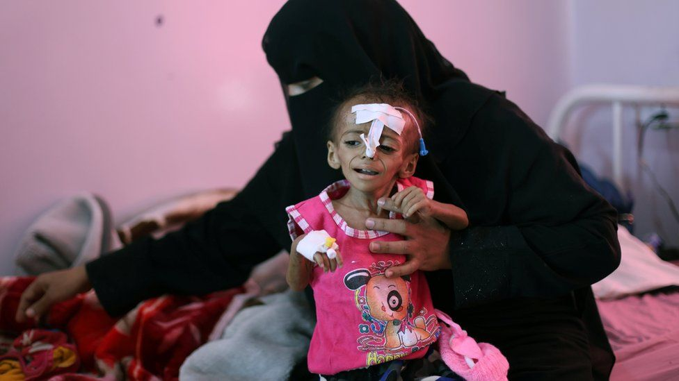File photo showing a woman holding her malnourished daughter at a malnutrition treatment ward of al-Sabeen hospital in Sanaa, Yemen October 27, 2020